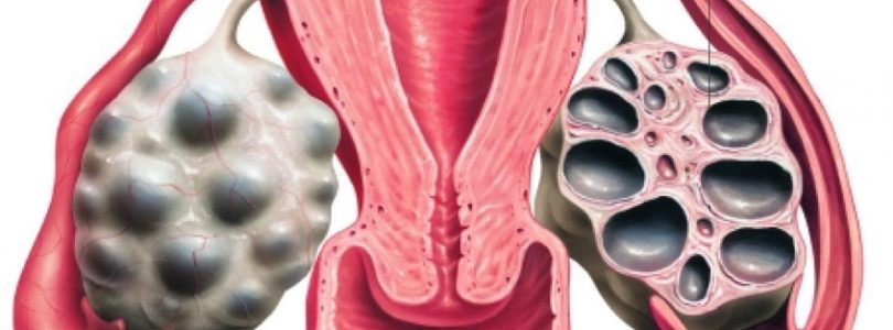 Ovarian drilling in PCOS: is it really useful?